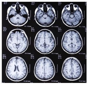 validity of brain scanning images to study human behaviour Brain imaging technology - bloa study guide by christineyiu  biological factors and human behaviour  by minute brain images from 20 taxi drivers as.