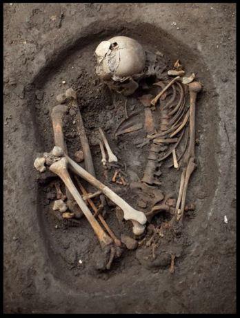 Foetal burial